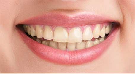 Smile Zone Dental Clinic